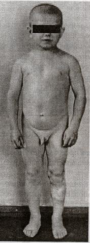 Массаж шиацу для увеличения груди ком